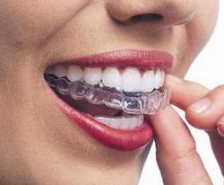 protesi dentale mobile torino