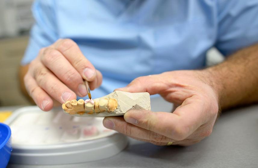 protesi dentali torino